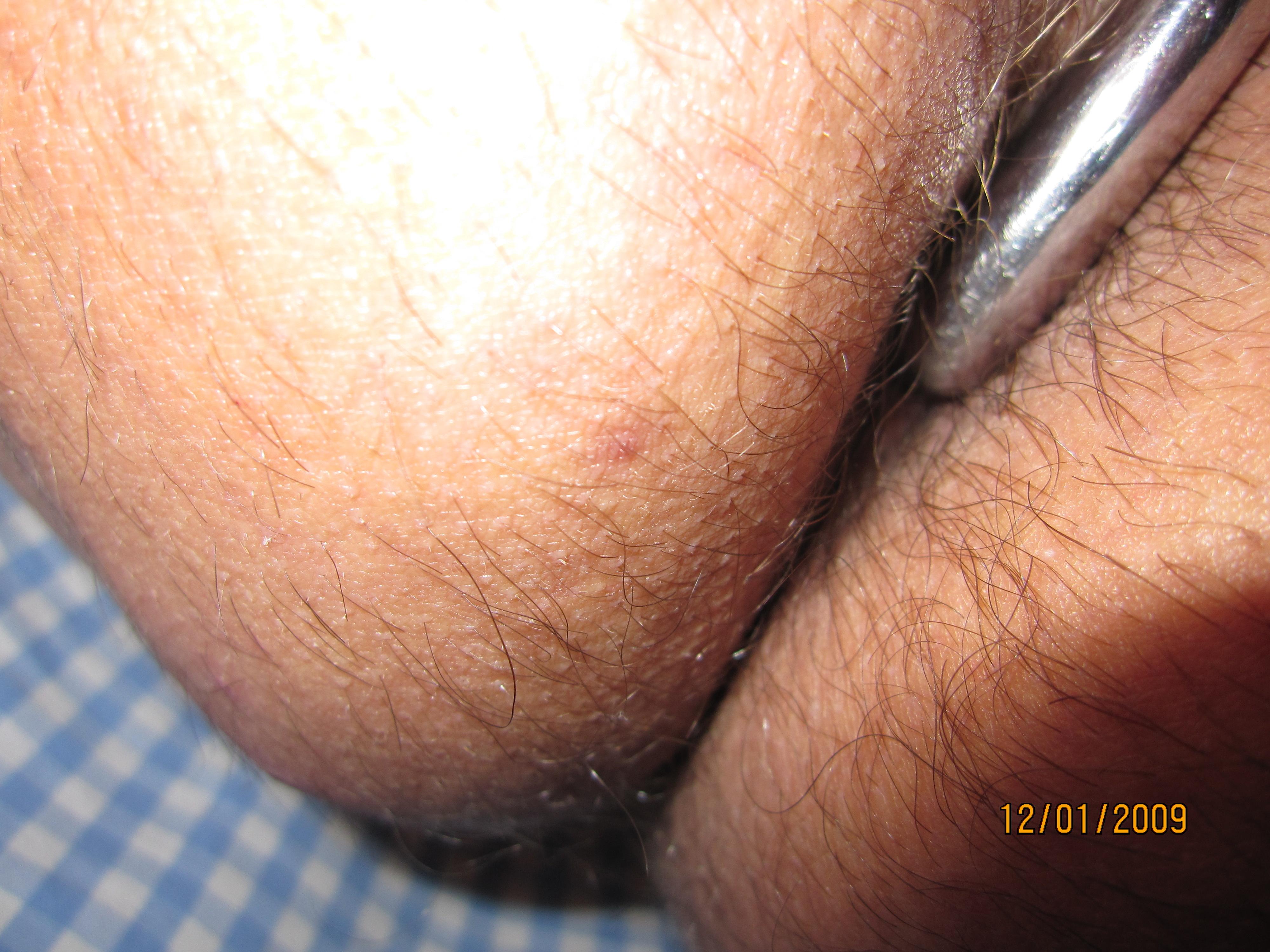 isobignuts